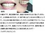 矯正経験があり、4本の歯の長さを短くしていただくことは可能?