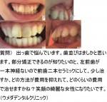 出っ歯で悩んでいます。部分矯正できるのが知りたいのと,左前歯が一本神経