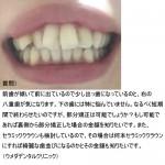 前歯が傾いて前に出ているので少し出っ歯に、右の八重歯が気に