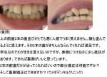 上の前歯2本の歯並びが悪く人前でうまく笑えません。顔も歪んでる