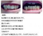顎が小さい割に歯が大きいです。費用を安くさせたいので部分矯正