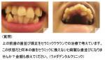 上の前歯の歯並び矯正をセラミッククラウンでの治療で考え、金額も