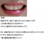前歯が大きく、曲がって前に出ていることに悩んで 部分矯正だけで