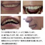 出っ歯で悩んでいます。左の一本が突き出ています。部分矯正は可能ですか?