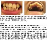 上の前歯の歯並び矯正、何本のセラミッククラウンで直せますか?
