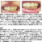 相対的に見ても上前歯2本が長いこと、ティースシェイピング治療法