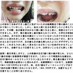 矮小歯を持つすきっ歯です。 人前に出る仕事をしたい どれくらいお金が