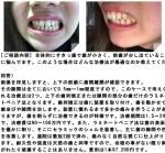 全体的にすきっ歯で歯が小さく、前歯が出ていることに悩んで どんな治療法が