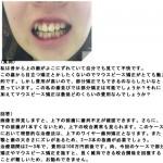 昔から上の歯がよこにずれていて 部分矯正で?マウスピース矯正?