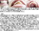 24歳で、ずっと気になっていた前歯の矯正を考えています。(出っ歯