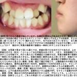 受け口と八重歯で悩んでいます。右側のみ親知らずがあるのですが、非抜歯矯正で