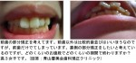 前歯の部分矯正を考えてます。裏側の部分矯正をしたいと考え 高3女子