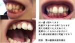 出っ歯で前歯が大きいのも気になります 見える矯正 費用は? 部分矯正矯正は?