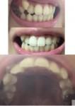 八重歯と前歯が前に出て、歯が後ろに押されてしまい空洞が 部分矯正は可能?