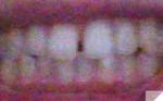 前歯の隙間が気になります 一番のコンプレックスですが治すためには、大金がかかる