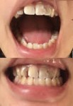 しゃくれていて、歯並びが悪いのが悩み 手術じゃなく矯正で治したい 治療法、大体の料金を教えて