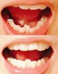 下の歯がガタガタで 部分矯正するか迷って 歯を抜いてもいいので綺麗にしたい 費用はどのぐらい?
