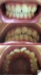 前歯1本が気になり矯正を 上下の噛み合わせが合ってなく上左の並びも全体的にずれ 費用を抑えた方法を?