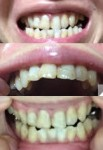 歯並びと受け口に悩んで 手術なしの矯正だけでなおしたい どのくらい見た目に変化が 肩こりも