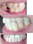 子供のころ不正咬合と診断 下3本が上歯より出ている 食事中に下唇をかんで 治療方法や治療期間、料金を