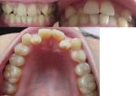 歯医者に上の歯の乱杭歯?を矯正した方がいいと 後ろに下がった歯はコンプレックス 部分矯正は可能?
