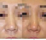 ギブス必要ですか?鼻先(団子鼻手術)?鼻尖軟骨縫縮(団子鼻手術)の効果と腫れ方