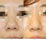 団子鼻手術、縛るだけで変わりますか?鼻尖縮小術(団子鼻手術)の効果と腫れ方。