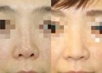シリコン(プロテーゼ)隆鼻術をどう使う??他院手術のフォローアップ。