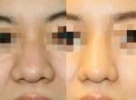 鼻尖形成術(団子鼻手術)と小鼻縮小術で印象をすっきり!!