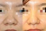 鼻の存在感を減らす!!鼻尖形成術(団子鼻手術)、小鼻縮小術の複合手術
