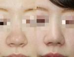 鼻の存在感を小さくする!鼻尖形成術(団子鼻手術)と小鼻縮小術ですっきり!!