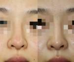鼻中隔延長やりすぎ!?他院(韓国)の鼻美容手術の修正の実際。