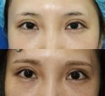 ちょっと気になる。眼瞼下垂後の目の雰囲気。他院修正って楽勝??