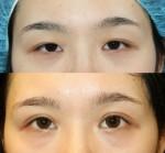 眼瞼下垂手術の効果。顔が変わる??
