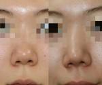 鼻尖に鼻尖の軟骨を移動させる??鼻尖形成のための軟骨移植法