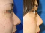 やりすぎ?!!鼻中隔延長術。他院修正の場合。