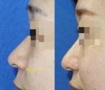 小鼻縮小術で、小鼻の高さが変わる?!