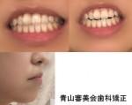 上歯と下歯の噛み合わせが昔からずれて隙間、噛めない状態で受け口気味