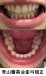 矯正が終わり しかし噛み合っているのは奥歯だけ 前歯は前後に隙間 全く噛み合っていません