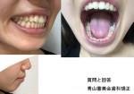 歯並びは悪くない 口元と突出が気になる 抜歯とワイヤー矯正が1番効果?
