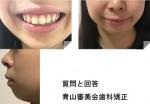 顎がないが悩み 裏側矯正で横顔は改善? 笑った時に口角の高さが違う 矯正で治る?