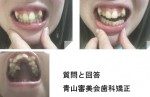 20歳女性 上の歯(2本ある歯の奥側)を抜きたい 矯正の予算は? 八重歯は抜かない