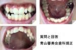 この上下の歯の部分矯正だと、どのくらいの期間と料金が?