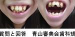 小学生から歯並びで悩んで 社会人になり歯列矯正をしたい 治療、抜歯、費用など