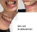 ガミースマイル で悩んで 歯列矯正や歯肉整形、粘膜切除、部分矯正とアンカースクリュー