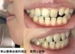 横から見ると口元が出て 受け口気味で切端咬合 矯正か外科手術どちらが?