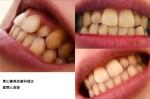 この歯をきれいに見せるにはどのような処置を?小さな歯が前歯の後ろに