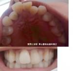 歯科矯正、上顎の矯正希望 前歯の出っ張りと両サイドへこみ 期間と安い金額を教えて