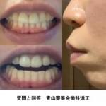 口元の前突が悩み 40代 歯茎からさげたい マウスピース矯正は 適正?骨切り以外で