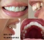 少し前歯を小さくし、前歯を内側に向けたい。口が閉まりにくいので、上の前歯を内側にしたい